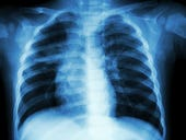 GE Healthcare wins FDA clearance for algorithms to spot type of collapsed lung