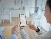 Kardia EKG after Apple Watch: AliveCor's future of remote patient care