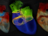 Nvidia's supercomputer toolset: Opening up workings of the human heart in real time
