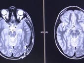 An AI-system to read head CT scans can help doctors work faster