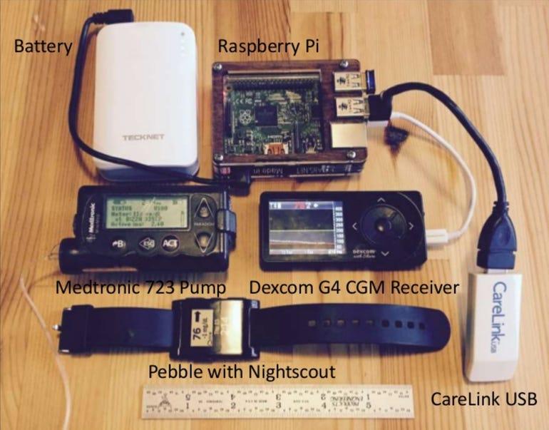 01-hacking-diabetes.jpg