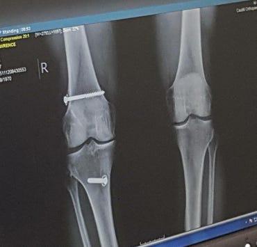 reconstructed-knee.jpg
