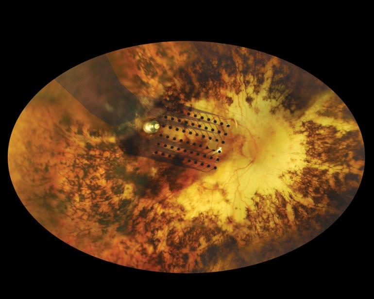 fundus-retinal-implantsecond-sight.jpg