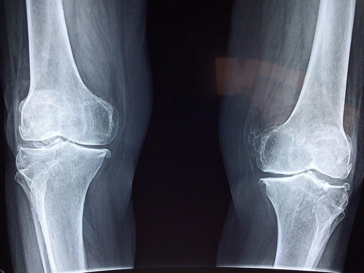 vuzix-knee-surgery.jpg
