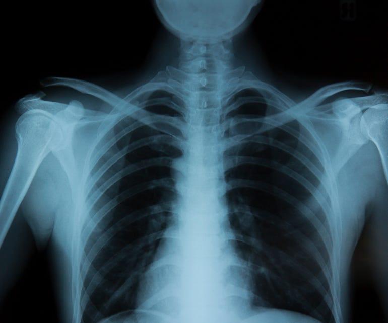 x-ray-istock-2.jpg