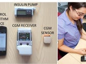How an Android-powered artificial pancreas could revolutionise diabetes management