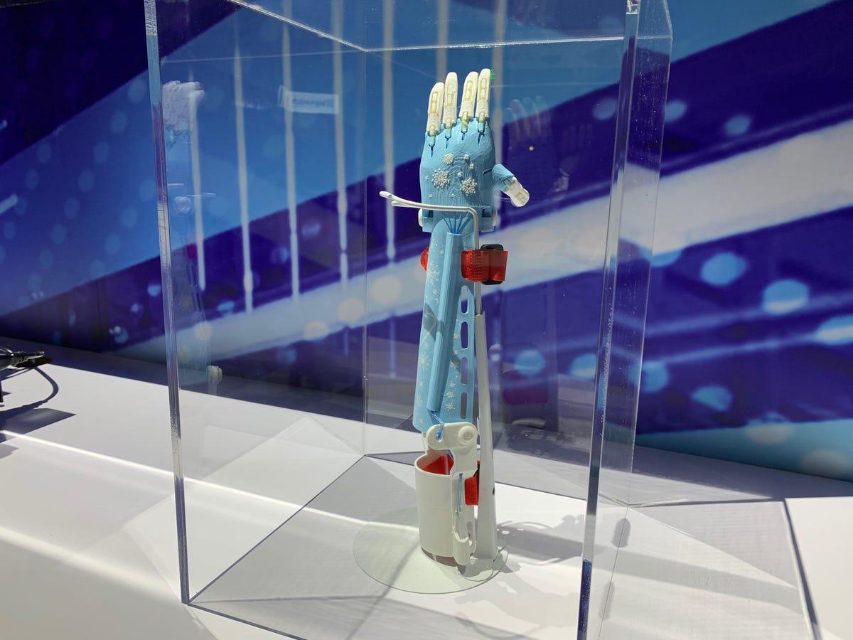 dell-technologies-3d-printed-prosthetic.jpg