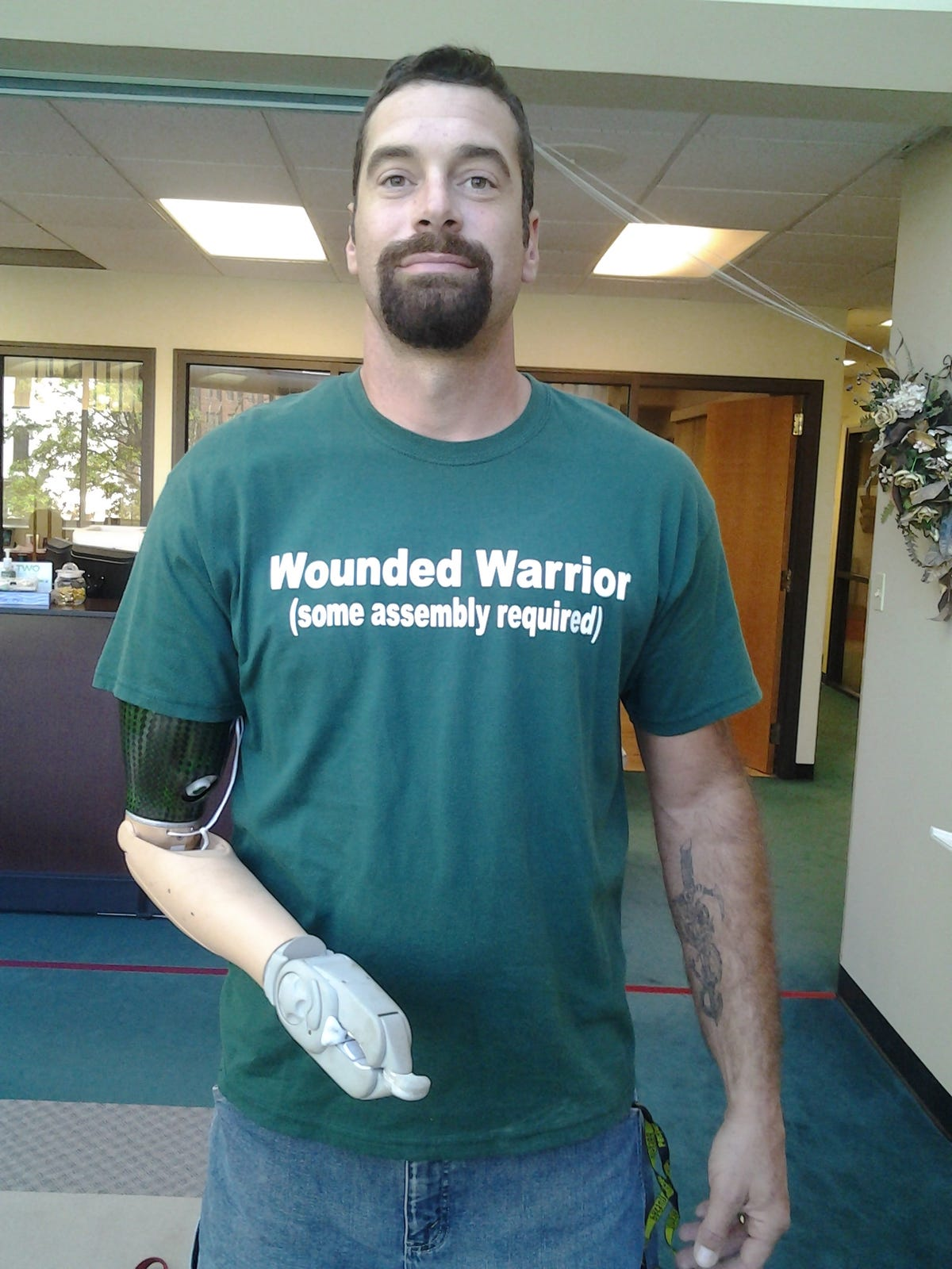 glen-lehman-with-complete-control-in-prosthesis.jpg