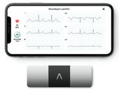 AliveCor uses remote medicine to provide critical heart rhythm testing to COVID-19 patients