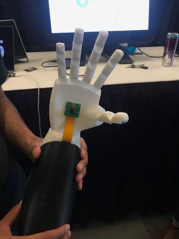 smartARM's winning machine learning prosthetic hand