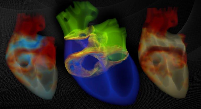 nvidia-barcelona-supercomputing-center-heart-simulation.jpg