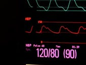 Security issues with IoT medical devices could put patients at risk