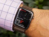 Sure, Apple Watch saved my life. But it could do so much more