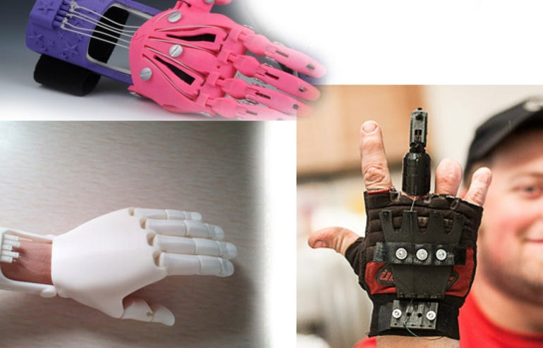 3D printing: Offering a helping hand
