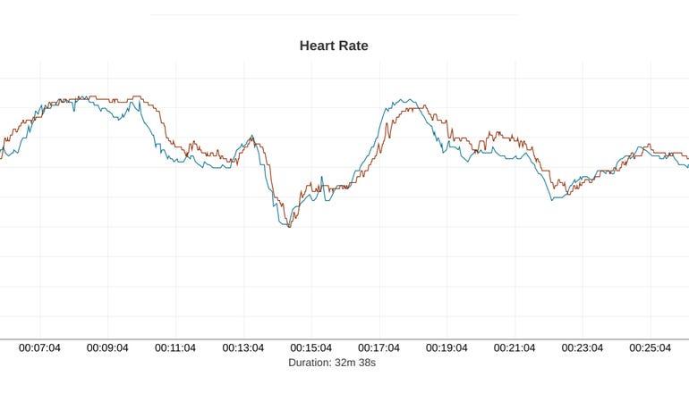 Heart rate, Fitbit Sense vs Garmin HRM-Pro chest strap