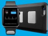 Former Google executive unveils EKG-enabled Kardia Band for Apple Watch