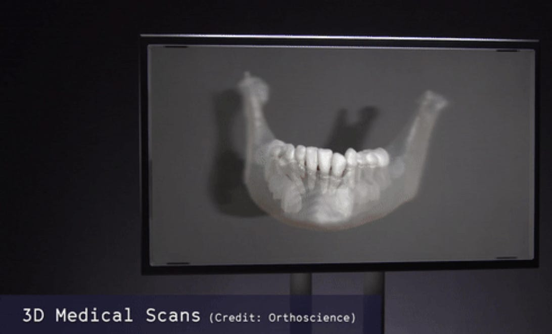 3d-medical-scan.jpg