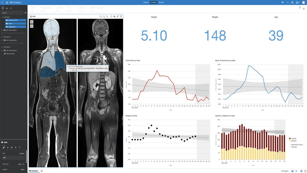 custom-map-analytics-used-in-mri-analytics-dashboard-with-human-body-map-layers-charts-and-indicators.png