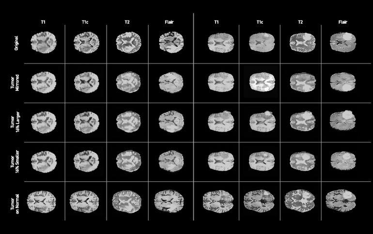 gans-syntheticbrainscans-image.jpg
