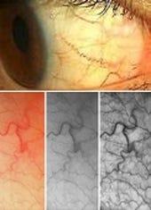 eyeprint