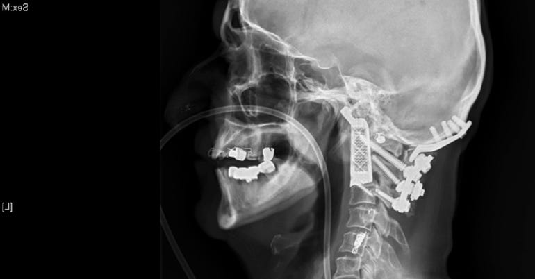 3D-printed implants and body parts