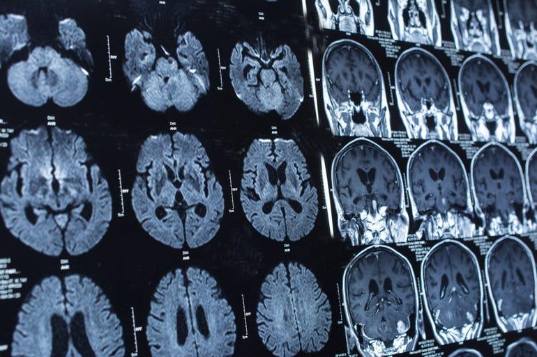skull-scan-thumb.jpg